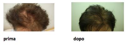prp-capelli